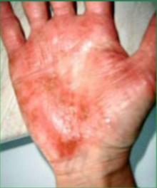 zniszoczne dłonie