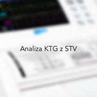 Aparaty KTG z analizą STV  ( Short Term Variation )
